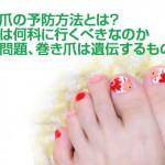 巻き爪の予防方法とは 病院は何科に行くべき?遺伝するものなの?