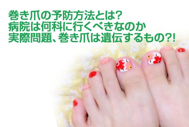 巻き爪の予防方法