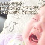 赤ちゃんのあせもが首周りにできた時のケア方法と治らない時の対策・予防方法!