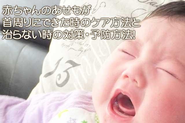 赤ちゃんあせも首周り